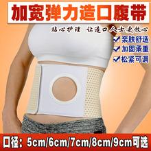 望康造co弹力加宽术pu腰围四季透气防控疝造瘘结肠改道孔