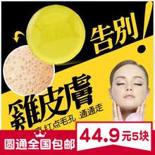 天然植物去鸡皮肤疙瘩gd7白晶体皂kp滋润洁面皂清洁毛孔角质