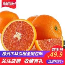 秭归中gs当季新鲜水wa脐橙鲜嫩多汁基地10斤全国包邮直发