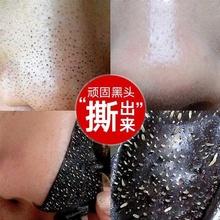 吸出黑ko面膜膏收缩mi炭去粉刺鼻贴撕拉式祛痘全脸清洁男女士